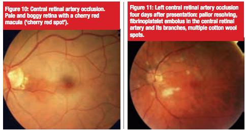 Retinal Pathology Part 4 Retinal Artery And Vein Occlusion